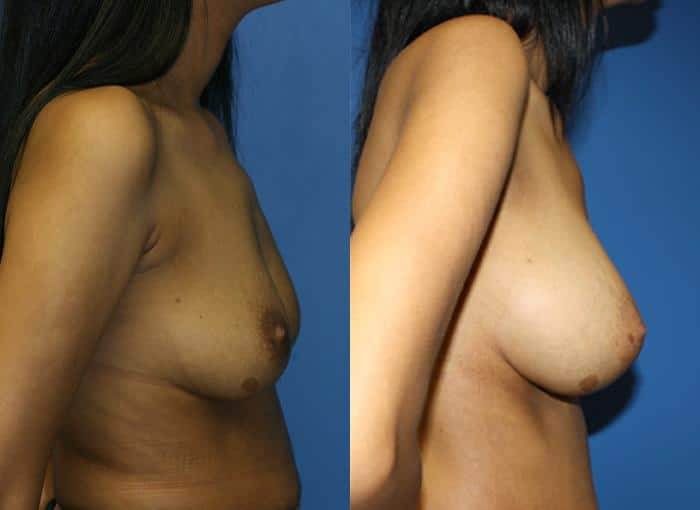 patient-761-breast-augmentation-before-after-1
