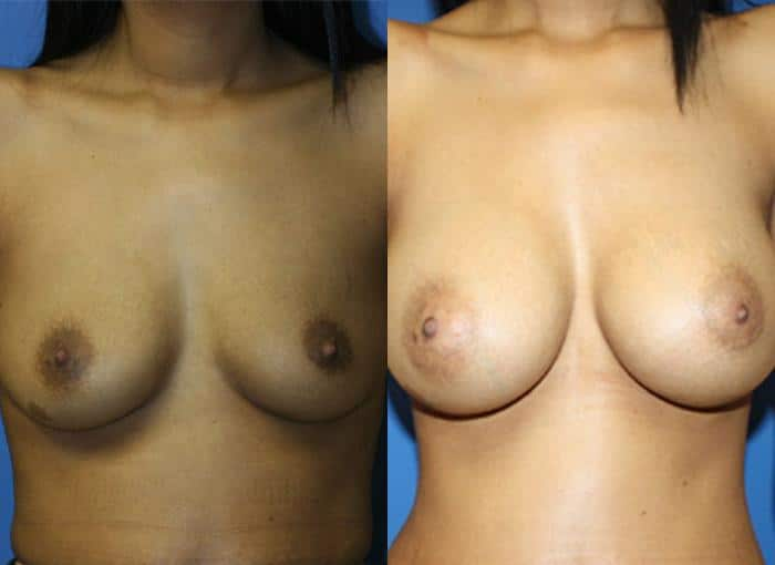 patient-761-breast-augmentation-before-after