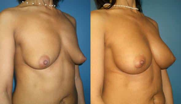 patient-766-breast-augmentation-before-after-1