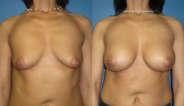 patient-766-breast-augmentation-before-after