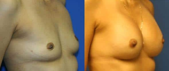 patient-773-breast-augmentation-before-after-1
