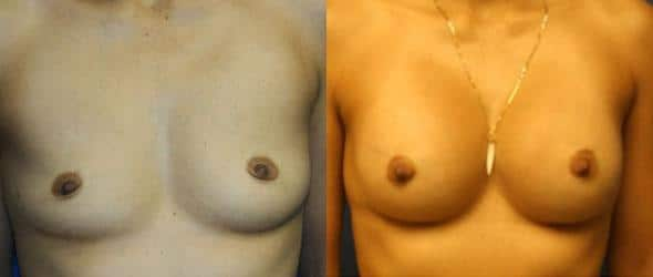 patient-773-breast-augmentation-before-after