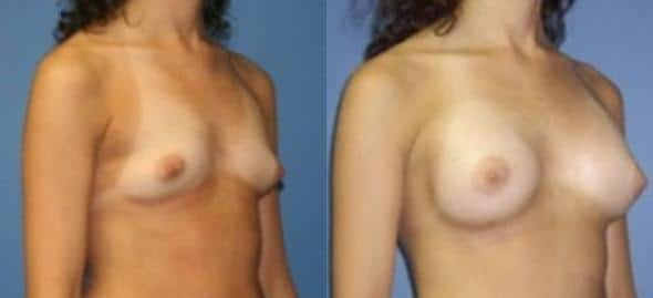 patient-804-breast-augmentation-before-after-1