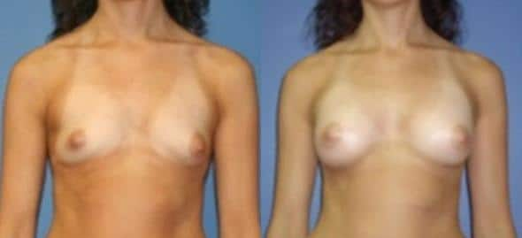 patient-804-breast-augmentation-before-after