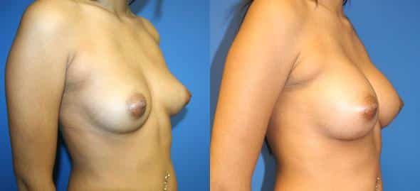 patient-814-breast-augmentation-before-after-1