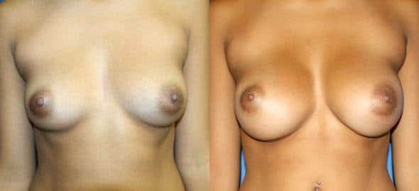 patient-814-breast-augmentation-before-after