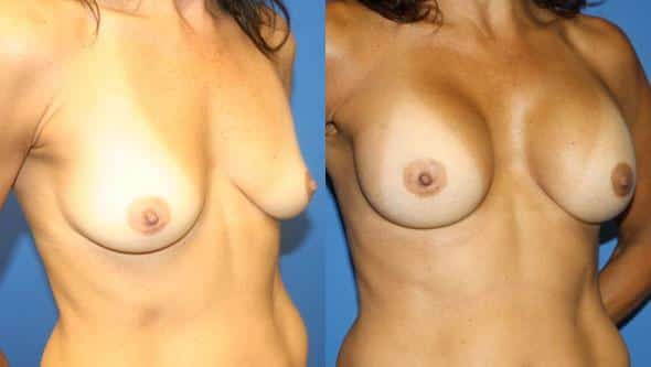 patient-821-breast-augmentation-before-after-1
