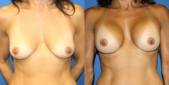 patient-821-breast-augmentation-before-after