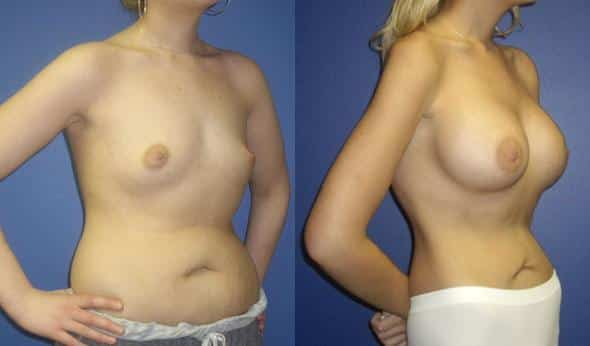 patient-832-breast-augmentation-before-after-1
