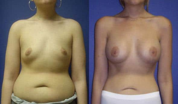 patient-832-breast-augmentation-before-after