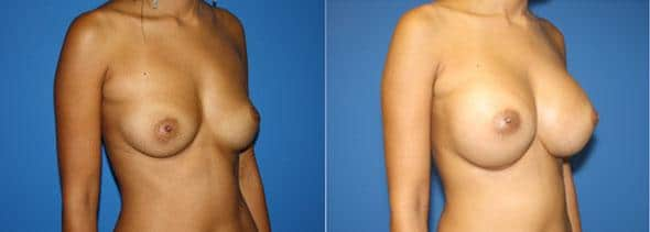 patient-843-breast-augmentation-before-after-1