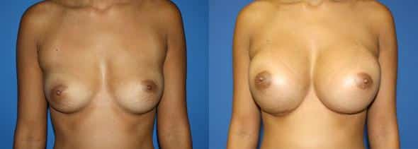 patient-843-breast-augmentation-before-after