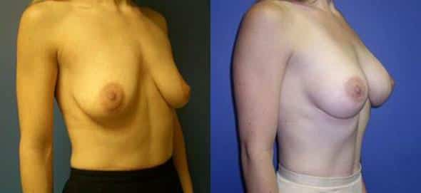patient-854-breast-augmentation-before-after-1