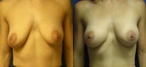 patient-854-breast-augmentation-before-after