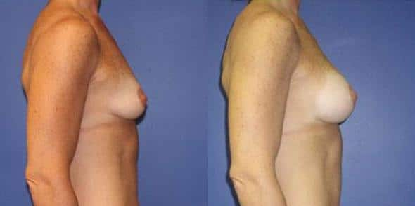 patient-861-breast-augmentation-before-after-1