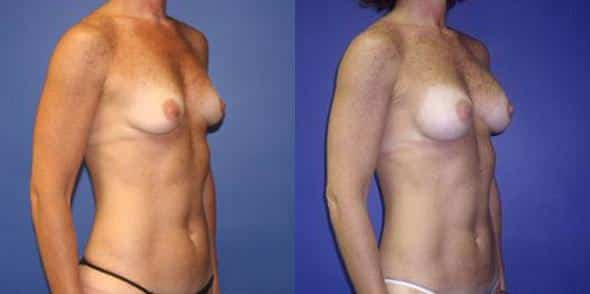 patient-861-breast-augmentation-before-after