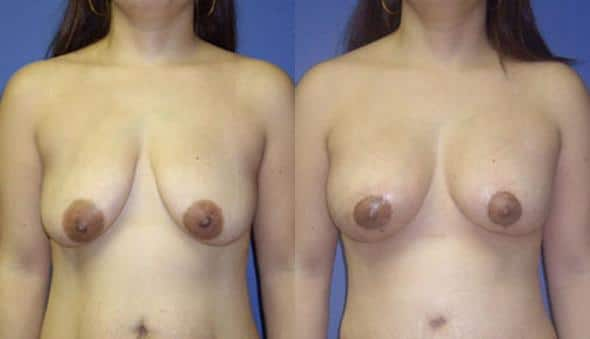patient-870-breast-augmentation-before-after