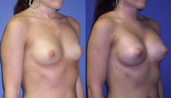 patient-881-breast-augmentation-before-after-1