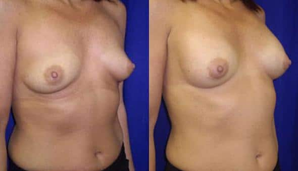 patient-892-breast-augmentation-before-after-1