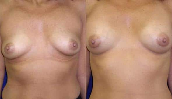 patient-892-breast-augmentation-before-after