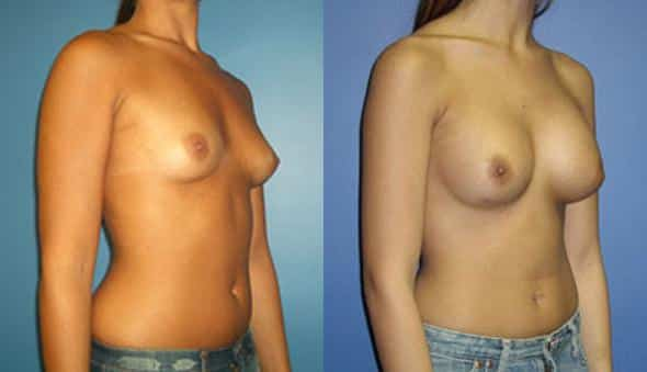 patient-903-breast-augmentation-before-after-1