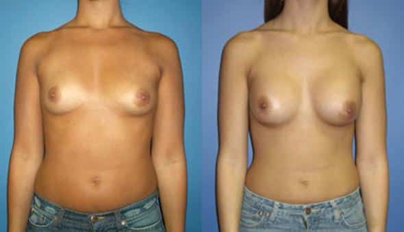 patient-903-breast-augmentation-before-after