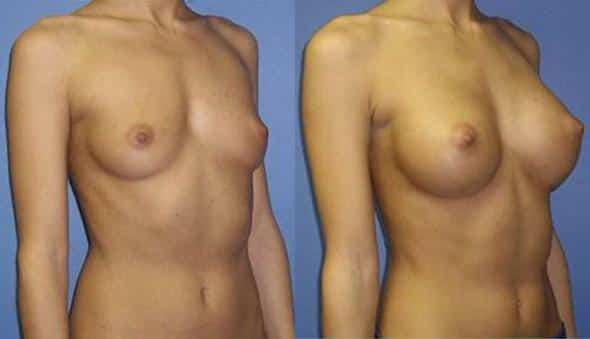 patient-912-breast-augmentation-before-after-1
