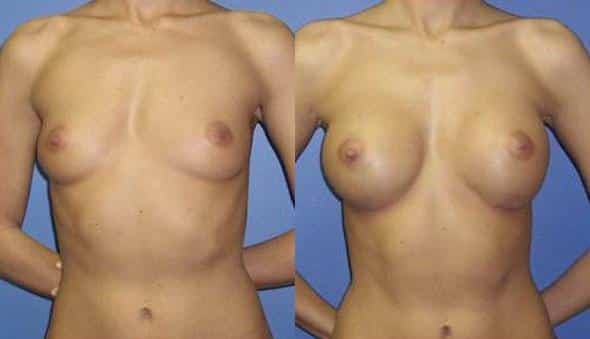 patient-912-breast-augmentation-before-after