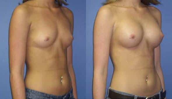 patient-923-breast-augmentation-before-after-1