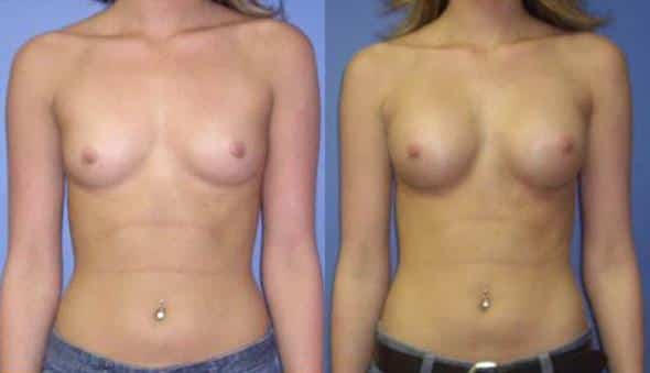 patient-923-breast-augmentation-before-after
