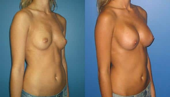 patient-934-breast-augmentation-before-after-1