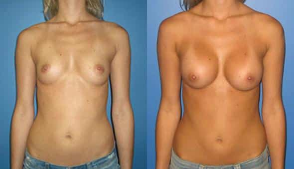 patient-934-breast-augmentation-before-after
