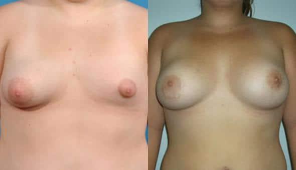 patient-945-breast-irregulatities-before-after