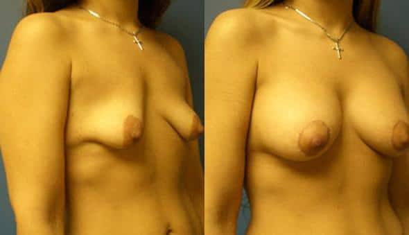 patient-956-breast-irregulatities-before-after-1