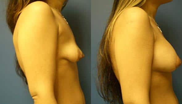 patient-956-breast-irregulatities-before-after-2