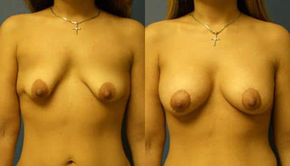 patient-956-breast-irregulatities-before-after