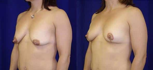 patient-968-breast-lift-before-after-1