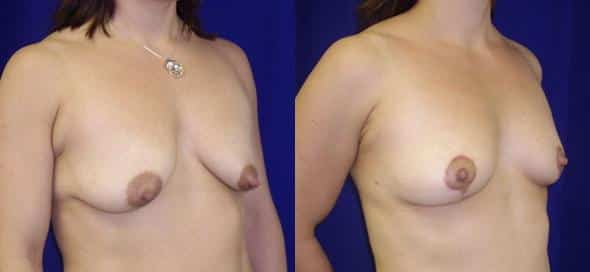 patient-968-breast-lift-before-after