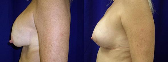 patient-975-breast-lift-before-after