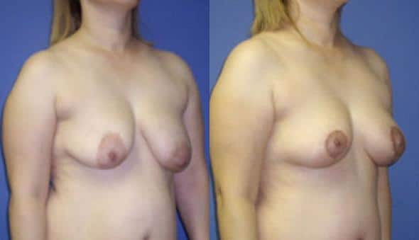 patient-978-breast-lift-before-after-1