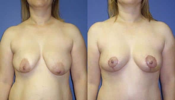 patient-978-breast-lift-before-after