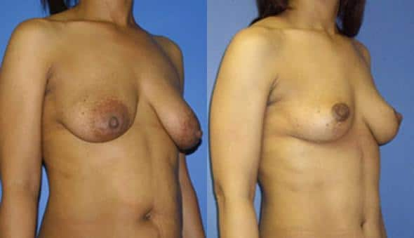 patient-989-breast-lift-before-after-1