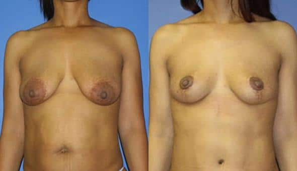 patient-989-breast-lift-before-after