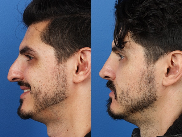 Before and After Rhinoplasty by Dr. Miller