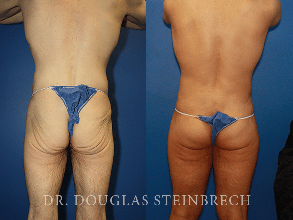 Before and After Bodybanking by Dr. Steinbrech