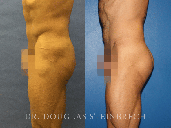 Before and After Gluteal Augmentation by Dr. Steinbrech