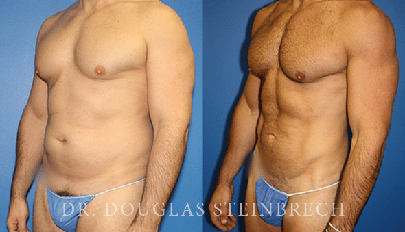 Before and After Liposuction by Dr. Steinbrech