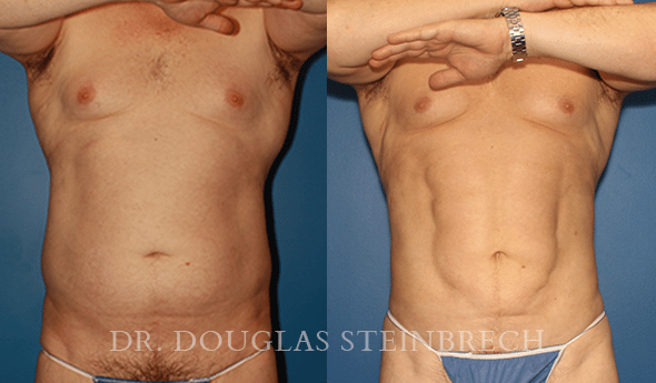 Before and After BodyBanking to Pecs & Shoulders by Dr. Steinbrech