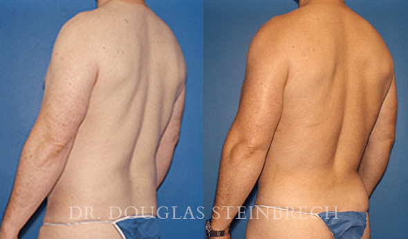 Before and After BodyBanking to Pecs & Shoulders by Dr Steinbrech