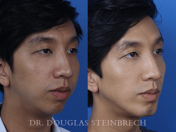 Before and After Male Model Makeover/Filler Treatment with Dr. Steinbrech